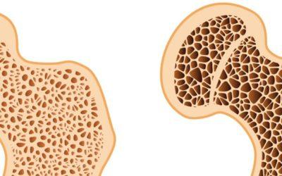 Niedobór magnezu i problem osteoporozy.