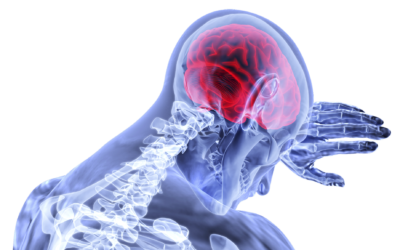 Udar mózgu postępowanie FAST, oraz rola Mg w profilaktyce.
